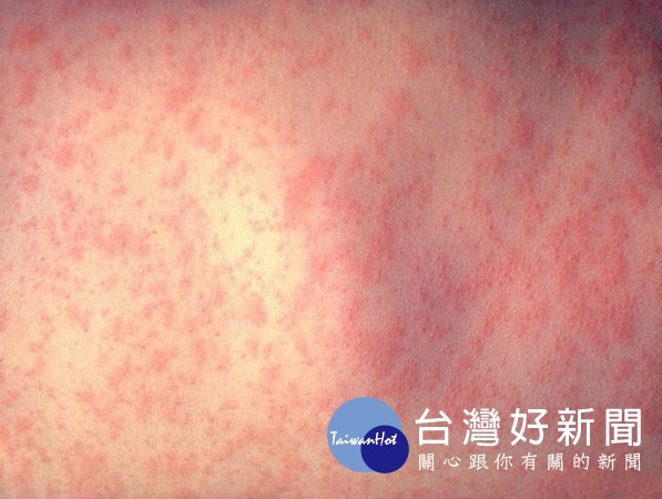 麻疹雖是一種普遍的兒童傳染病,不過在台灣的疾病防治政策,與針對出生滿12個月大及國小一年級學童接種MMR疫苗的規定下,台灣近年鮮少有人得麻疹,得病者多是成人,且均為境外移入病例。(圖/Wikipedia)