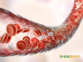 你有心血管疾病嗎? 低密度膽固醇要小於70
