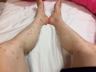 被蚊子叮的如紅豆冰。林重鎣攝