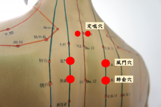 中醫師鄒曉玲提醒,孕婦、一歲以下小孩、嚴重心肺功能不足、皮膚經短時間敷貼即會大量起泡者,不適合三伏貼灸治療。