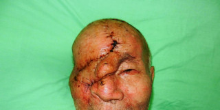 皮膚癌沒做後續追蹤 終連眼球都不保