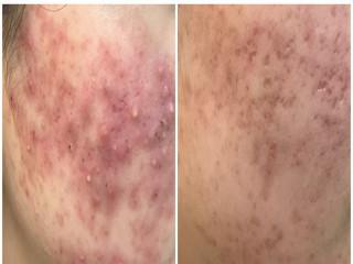 吃冰滿臉青春痘治療前( 左)後比較。林重鎣翻攝