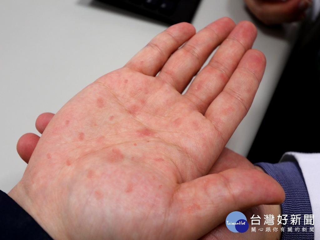 梅毒 湿疹 画像