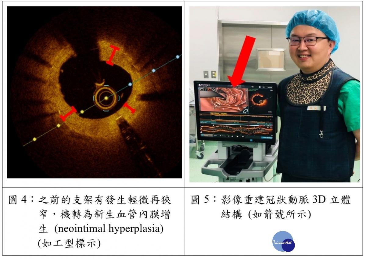 提供術中更清晰解析度 影像導引心導管手術優質再進化